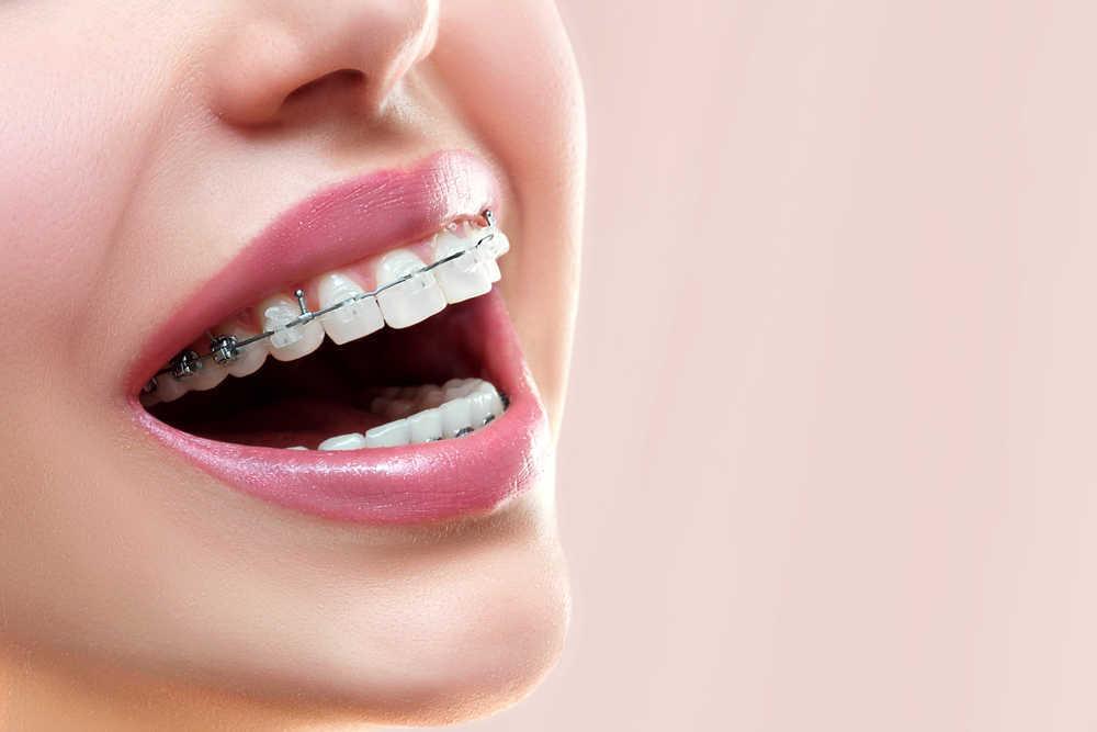 Brackets para ortodoncia, conócelos.