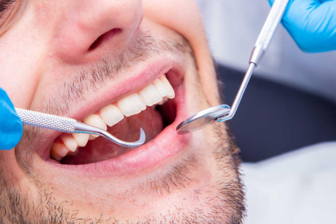 ¿Qué debemos hacer para superar el miedo al dentista?